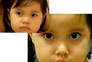 Cirugía del estrabismo divergente en los niños