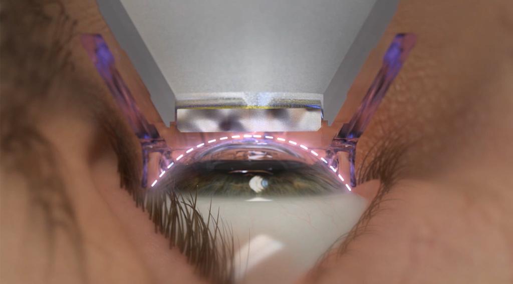 Cirugía Refractiva Con Láser Femtosegundo