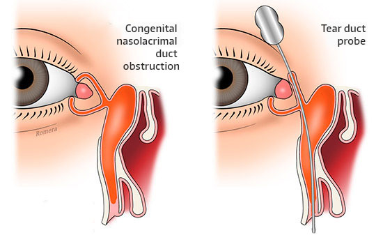 Congenital nasolacrimal duct obstruction diagram