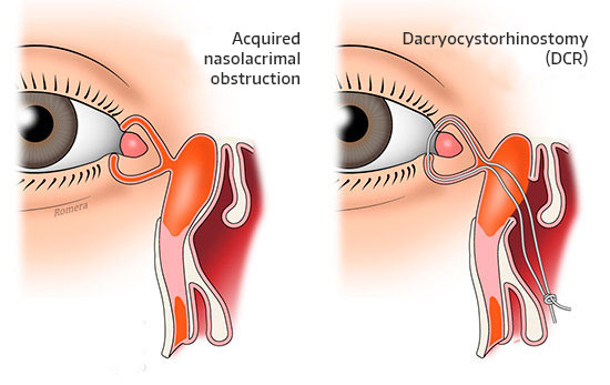 Acquired tear duct obstruction diagram