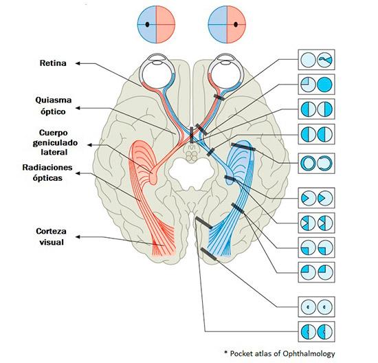 Mapa neurooftalmológico del cerebro