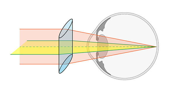 Cylindrical Lens For Astigmatism. Diagram