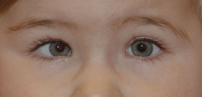 What Is Congenital Strabismus?