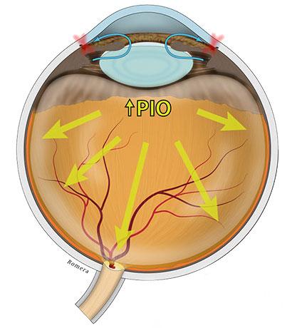 Efectos de la presión intraocular