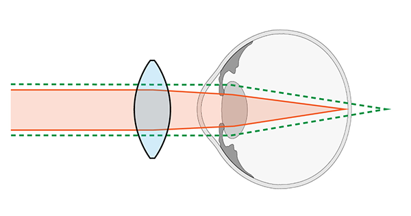 Convergent Lens For Hypemetropia. Diagram