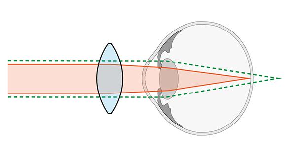 Lente Convergente Para Hipermetropía