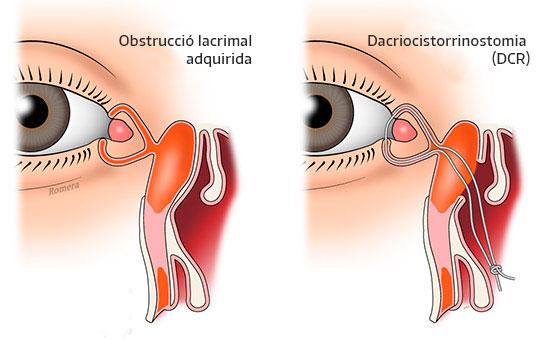 Esquema d'obstrucció lacrimal adquirida