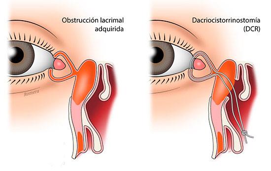 Obstrucción adquirida del lagrimal