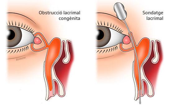 Esquema obstrucció lacrimal congènita