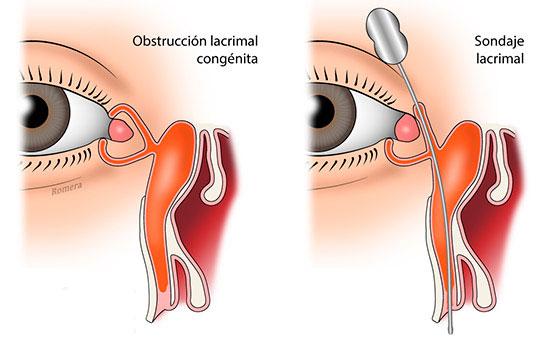 Obstrucción del lagrimal congénita