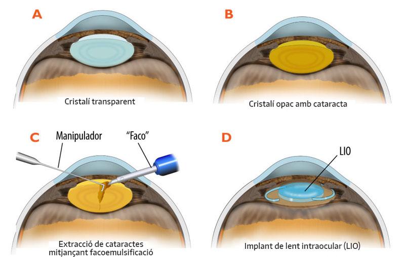 Esquema de la cataracta