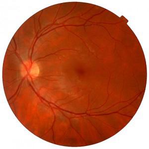 Retina sana