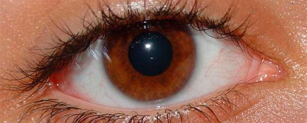 Superficie ocular sana