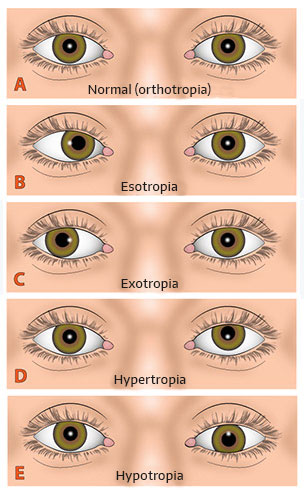 Types of strabismus and causes