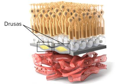 Desecho acumulado que producen los fotorreceptores