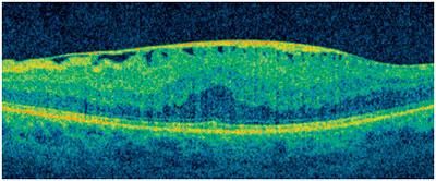 Proliferación fibrosa avascular sobre la retina.