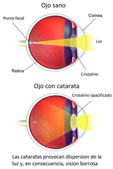 ojo-sano-ojo-con-catarata