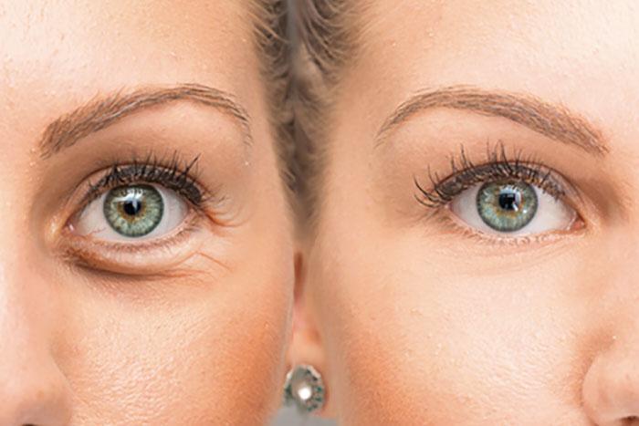 Tratamiento Oculofacial - INOF
