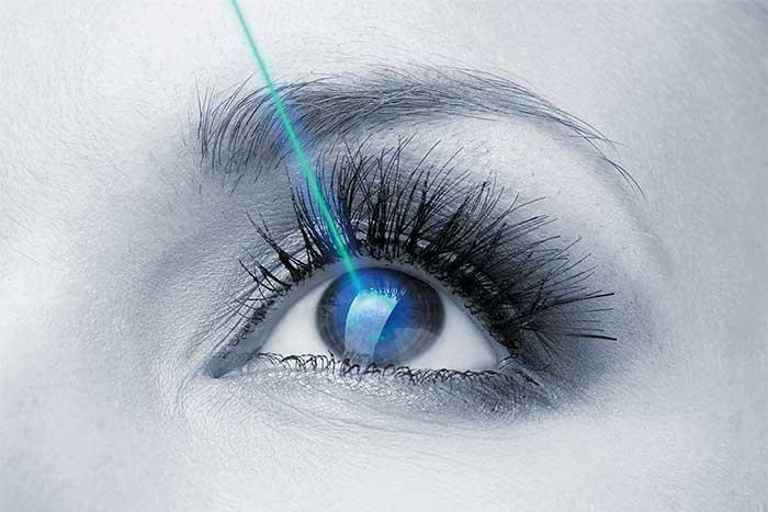 ¿Qué Es Y Cómo Se Realiza La Cirugía Refractiva?