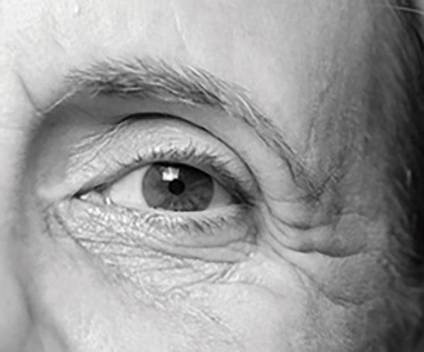 Tratamiento de ojeras -Inof