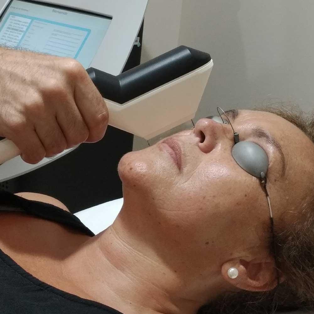 Paciente recibiendo tratamiento de láser IPL. INOF