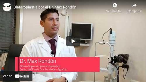 Vídeo De La Blefaroplastia